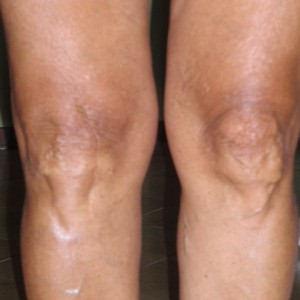 ginocchio tennista guarito dall'algodistrofia