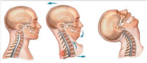 whiplash-neuroatlas-trattamento-colpo-di-frusta-sublussazione-dell'atlante