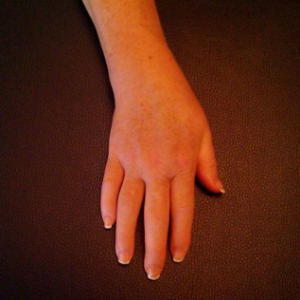 mano algodistrofica dopo neuroreset