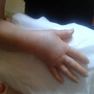 mano algodistrofica