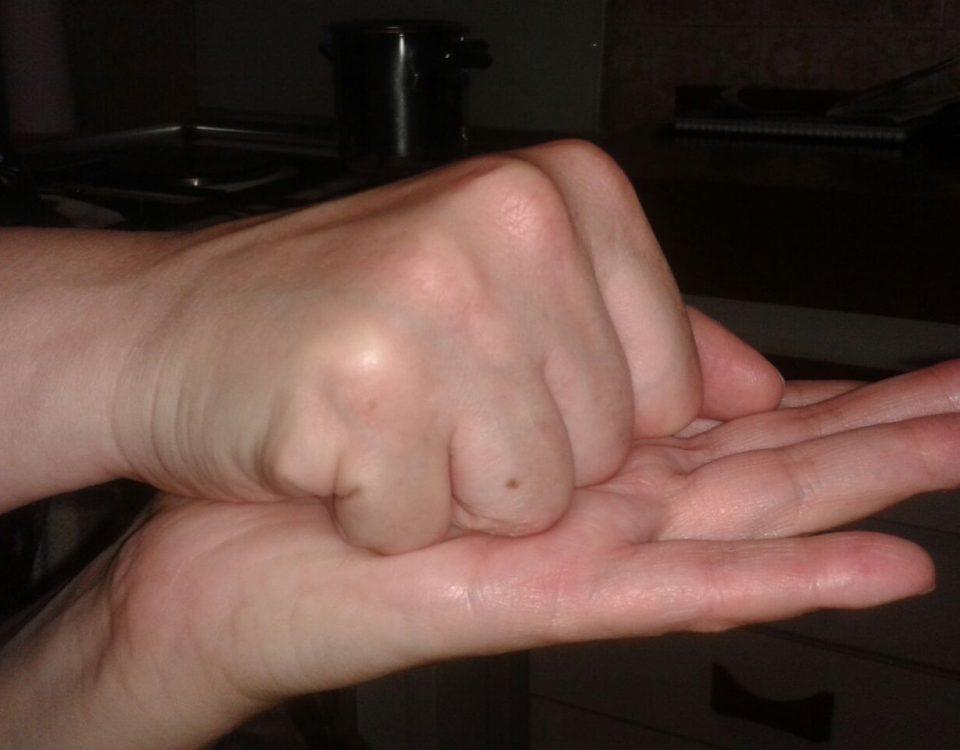 mano algodistrofica post trattamento neuroreset